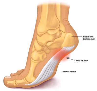 Are you tired of constant foot pain?